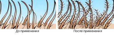 до и после применения нановолокон наноген (nanofibres)