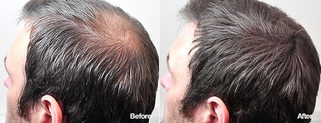 Кератиновые волокна для волос